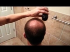 Fibond.com - Hair Loss Solution for Men and Women