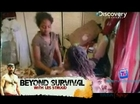Medical Anomalies  - 22th June 2011 Video Watch Online p1